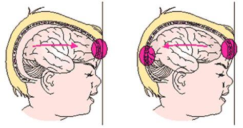 mal di testa frontale bambini brain injury child injury brain injury in