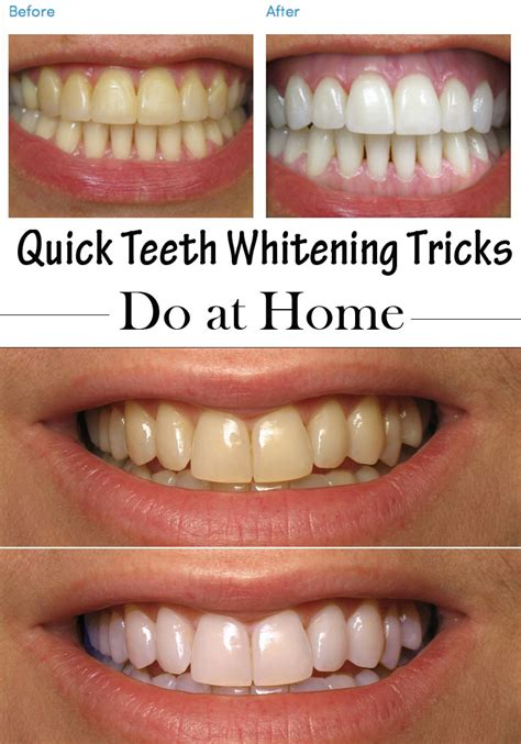 quick teeth whitening tricks    home timeless