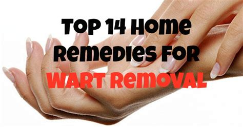 top 14 home remedies for wart removal
