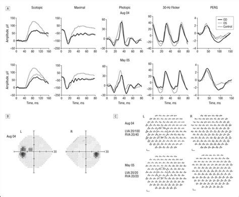 pattern erg p50 electrophysiological findings in patients with dengue