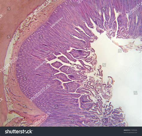 microscopic cross section microscopic cross section ileum portion wall stock photo