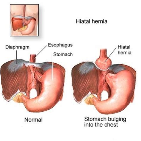 heartburn after c section hiatus hernia info justification of hiatus hernia