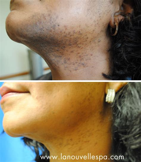 no no hair removal for african americans 1 in laser hair removal oxnard ventura county