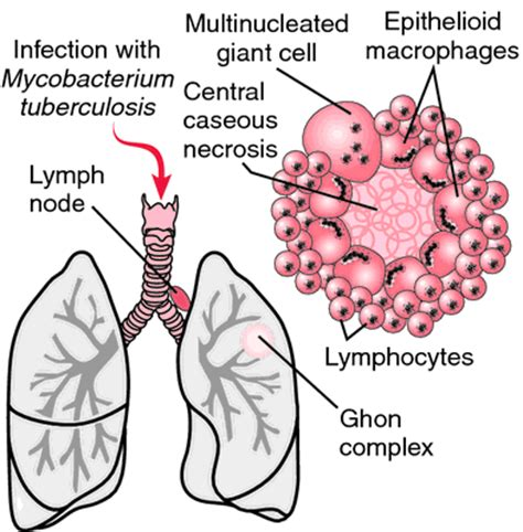 tuberculosis diagram pneumonia inflammation of the lung pathalamus