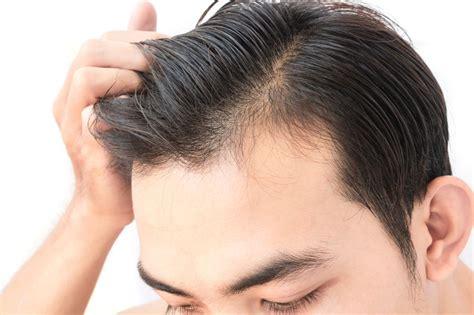 best hair loss shoo for men wie dein d 220 nnes haar voller aussieht barber trends
