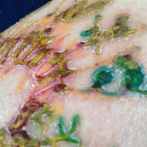 tattoo healing oozing tattoo peeling is it normal for tattoos to flake peel