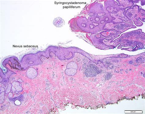 Basaloid Follicular Hamartoma Pathology Outlines by Basaloid Follicular Hamartoma Pathology Outlines Sales Cover Letter Exles Contact Book