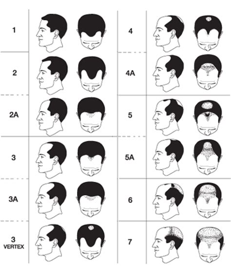 growth pattern classification image gallery male baldness