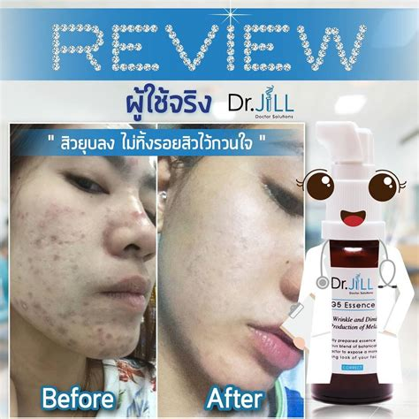 Blouse Korea Elegance Original Import T1063 dr g5 essence serum anti aging moisturizing skin