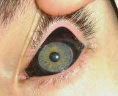 tattoo eye bbc scleral tattooing is the practice of tattooing the sclera