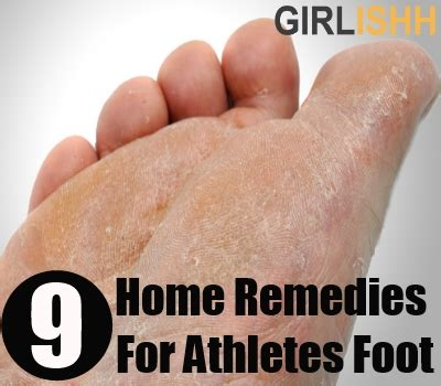 athletes foot home remedy top home remedies for athletes foot how to get rid of