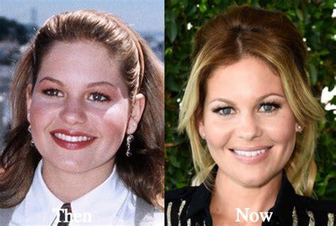 heather bilyeu plastic surgery heather bilyeu nose job candace cameron plastic surgery