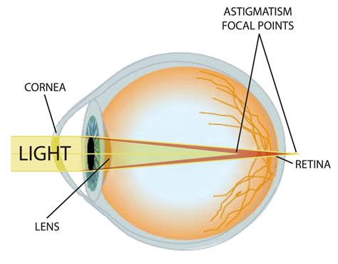 diagram of cornea what lasik solves advanced vision network