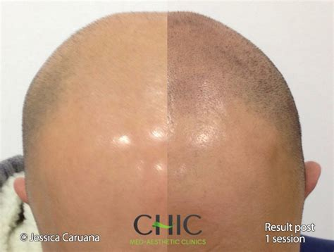 pics of scalp micropigmentation on people with long hair chic scalp micropigmentation