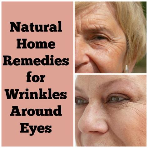 home remedies for wrinkles parents