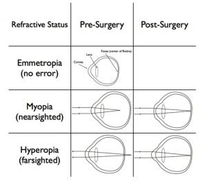 overview of refractive surgery | kugler vision