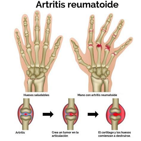 imagenes de varias manos artritis reumatoide facilisimo com
