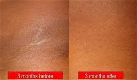 ashen color skin knee and other skin discoloration treatments bay