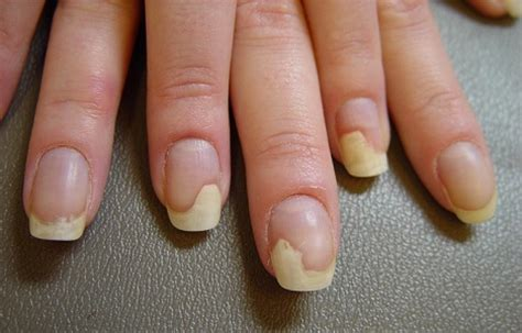 toenail separated from nail bed is black streaks in your fingernails a cause for concern