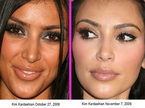 Kim Kardashian Nose Job Plastic Surgery Before & After