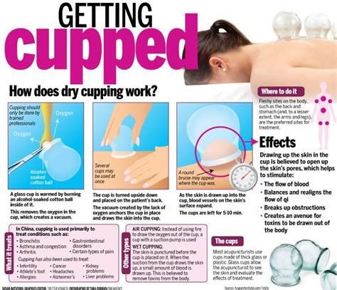 Cupping Detox Therapy by 25 Best Ideas About Cupping Therapy On