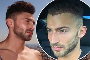 coronation hair tansplant i m a celebrity s jake quickenden undergoes hair
