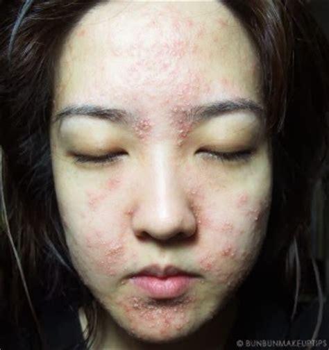 wajah mulus perempuan cantik ini jadi penuh jerawat nanah akibat perawatan wajah gratis