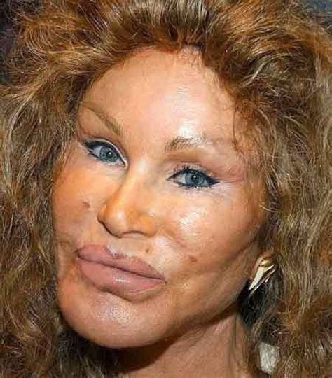 Plastic Surgery Gone Wrong | celebrities plastic surgery gone wrong strange true