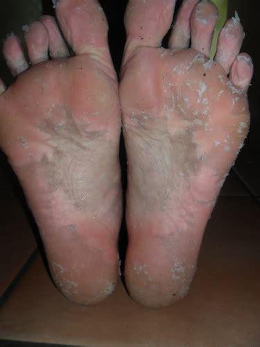 diy foot peel dead skin acid peel for your kitchen cabinet remedy