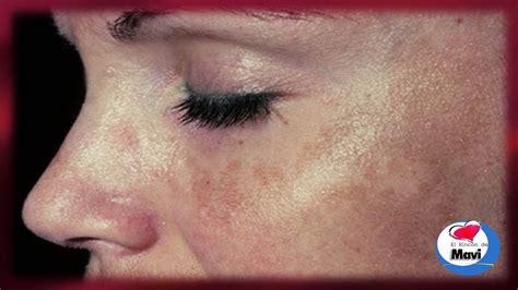 imagenes de manchas oscuras en la cara como eliminar las manchas solares o marrones de la piel