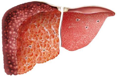 alimentazione per cirrosi epatica la cirrosi epatica 232 una
