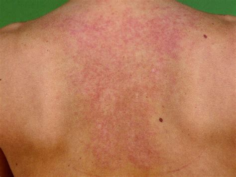 rug rash reticulaire erythemateuze mucinose rem syndroom