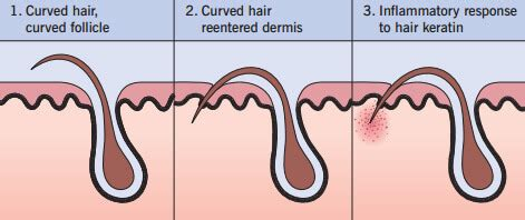 how to prevent ingrown hairs after a haircut 11 tips to cope with an facial ingrown hair problem