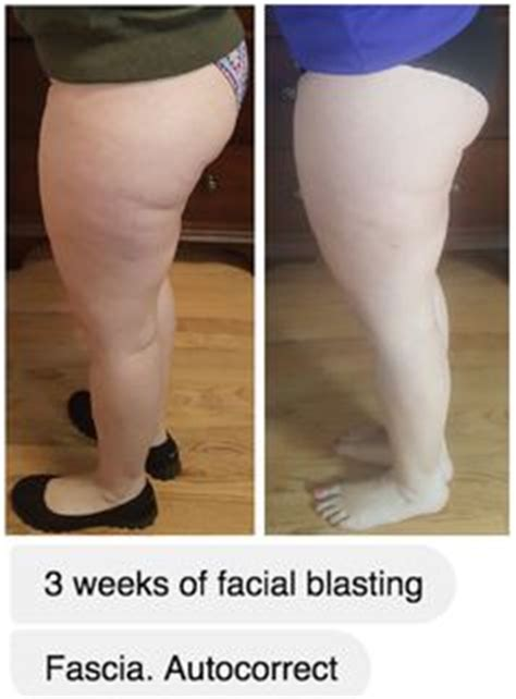 fascia blasting for the tummy 1000 images about fasciablaster 174 transformations on