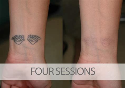 tattoo removal how many sessions before and after laser removal results eraditatt