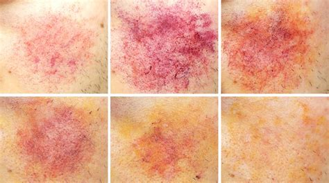 bruise colors stages of bruises pictures to pin on thepinsta