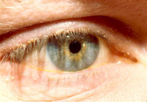 blepharitis images blepharitis treatment www imgkid the image kid has it