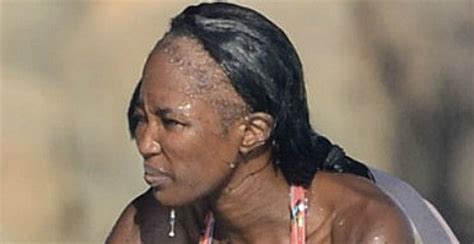 hair weave styles 2013 no edges the rise of celebrity hair loss dr rahal