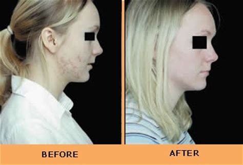 light treatment for cancer cancer therapy blue light skin cancer therapy
