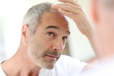 hair loss 50 years male pattern baldness causes and treatment