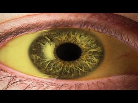 cara tato bola mata cara memutihkan bola mata yang kuning secara alami youtube