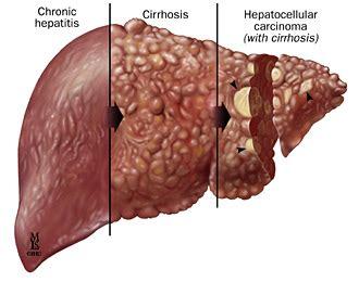 Herbal Hepatitis A B C Hebal Hepatitits Aman obat alami penyakit hepatitis obat alami penyakit
