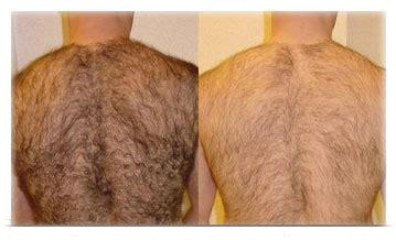 imagenes depilacion ingles brasileñas resolvemos las dudas de la depilaci 243 n laser masculina