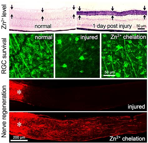 nerve damage after c section zinc a surprise target in regenerating the optic nerve
