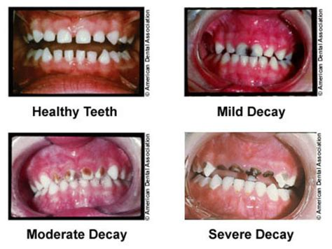 dental testimonials cure tooth decay studying tooth enamel nanostructure may lead to less time