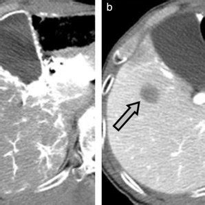 hcc during dynamic ct (arrow): arterial phase (a) and