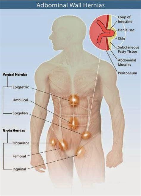 natural tips  treat hernia natural fitness tips