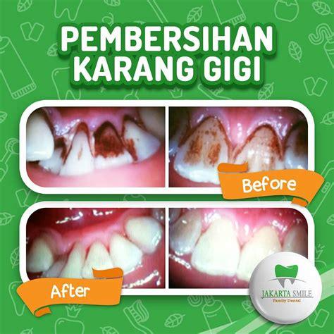 Biaya Pembersihan Karang Gigi Di Dental perawatan jakarta smile