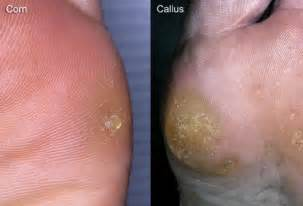 corns and calluses symptoms treatment and prevention
