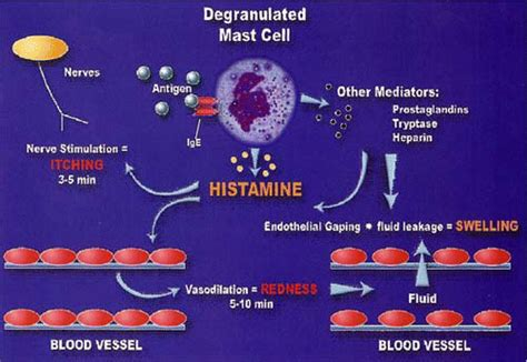 Detox Symtoms Or Histamine Response by Allergic Conjunctivitis